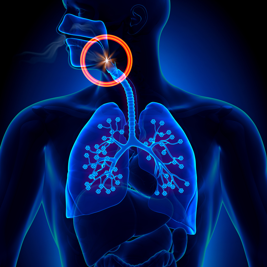 High flow oxygen therapy as effective as bipap in preventing