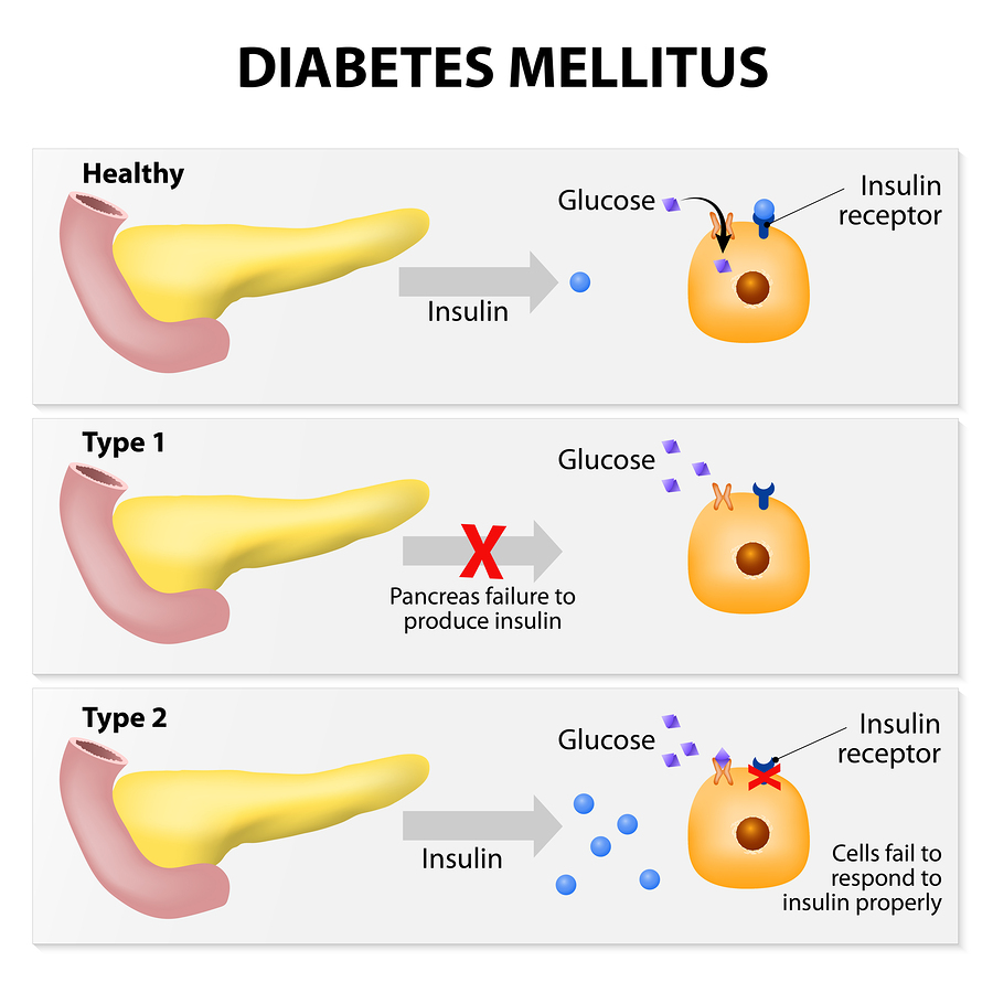 a big responsibility for having a diabetes What you are looking diabetes brazil big problem with diabetes,we collect what you are looking for here⭐️⭐️⭐️⭐️⭐️ help today.