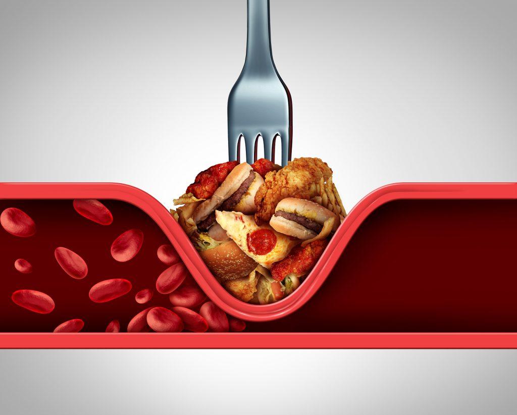 food blocking an artery